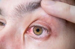 borelioza-a-oczy